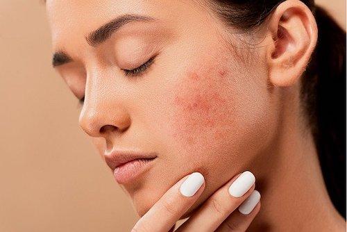 cbd for acne skin conditions